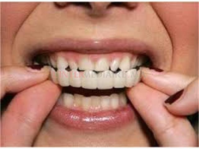 Clip dentaire amovible ˋSNAP'